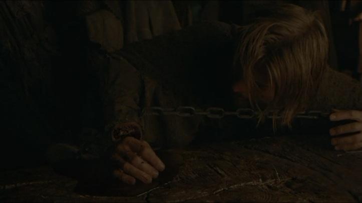 Jaime's_Hand_gone